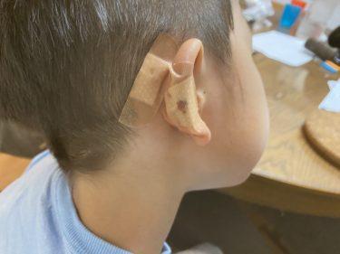 【子供が夜間救急で5針縫う】夜机の角に耳と頭をぶつけて出血!縫った後の傷口処置など